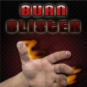 Burn Blister by magic-factory